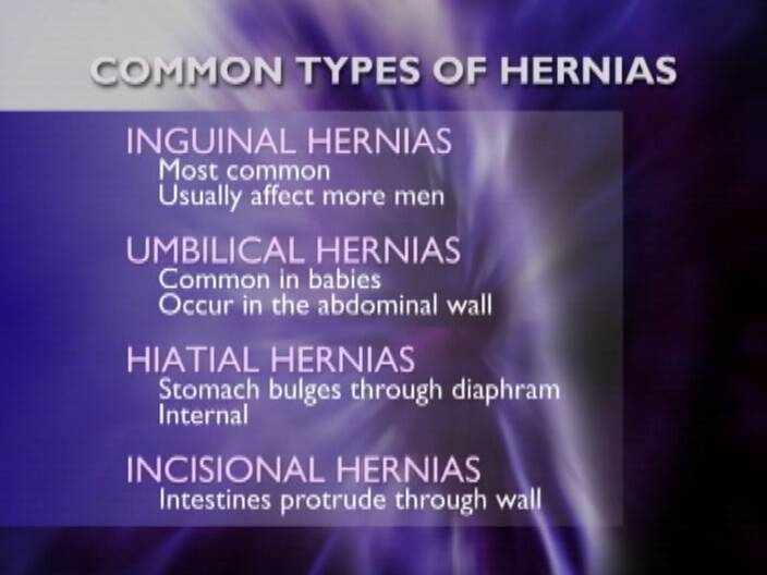 pictures of belly button hernias in adults