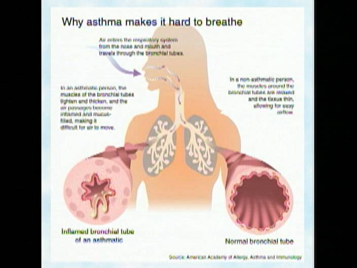 Before an asthma attack, take a deep breath with Healthy Living ...