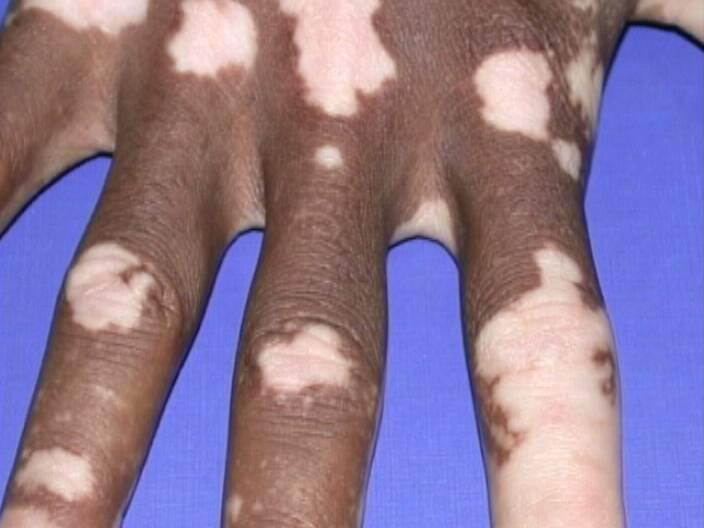 naked-with-skin-disease-trish-stratus-sex-xxx