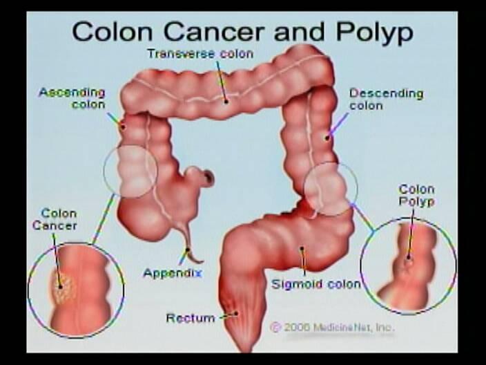 Healthy Living Gets Colon Cancer Screening Channel5belize Com
